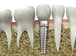 implant-model